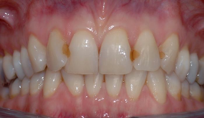 brun flekk på tann