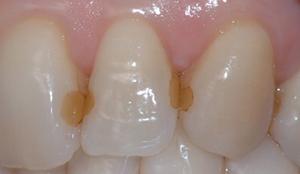 Kosmetisk tannbehandling bergen