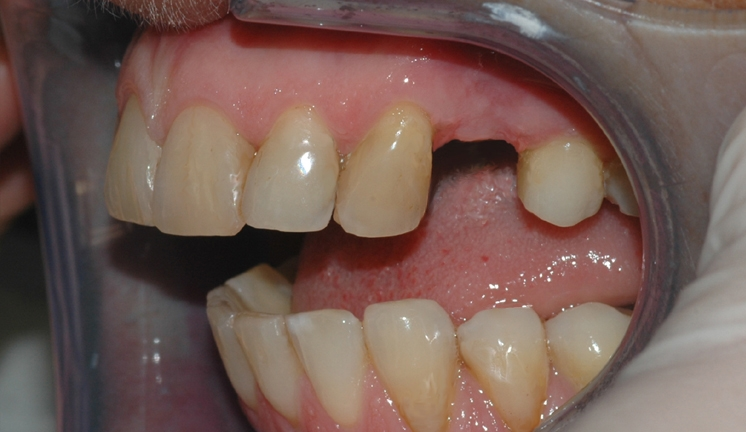 implantat klinisk 1