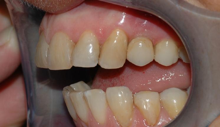 implantat klinisk 3