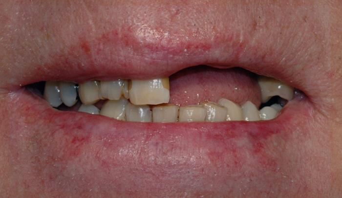 implantat klinisk 4