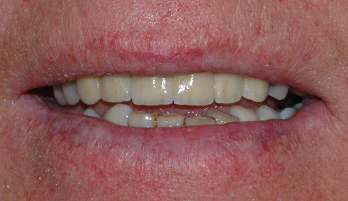 implantat klinisk 5