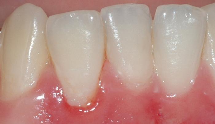 gingivitt Pasient 1 1