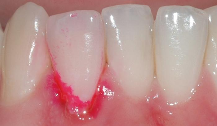 gingivitt Pasient 1 3