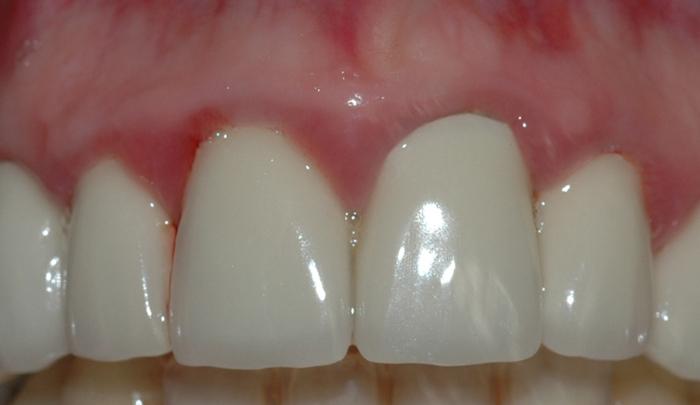 gingivitt pasient 2 1
