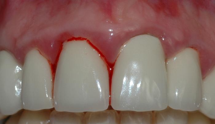 gingivitt pasient 2 2