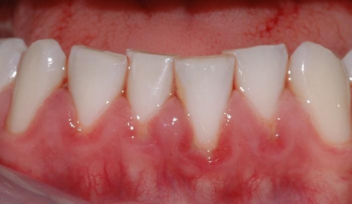 gingivitt pasient 3 1